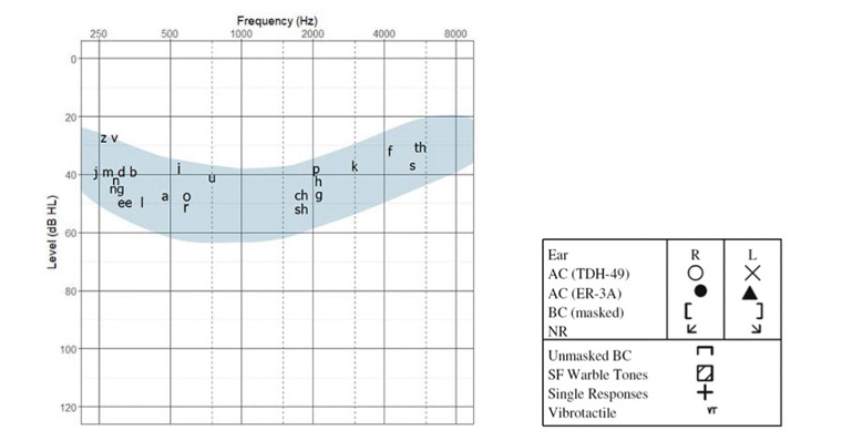 Audiogram with shaded area to show average pitch and loudness