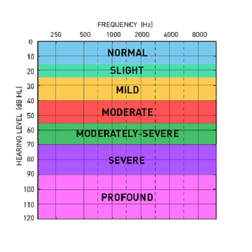 Audiogram with hearing levels color coded