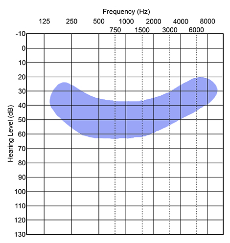 Blue graph audiogram